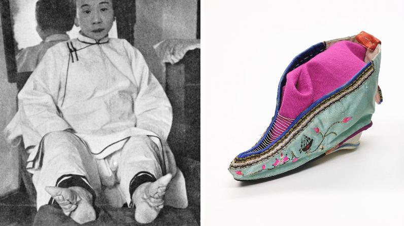 pieds bandes chaussures pointues chine souffrir pour être belle