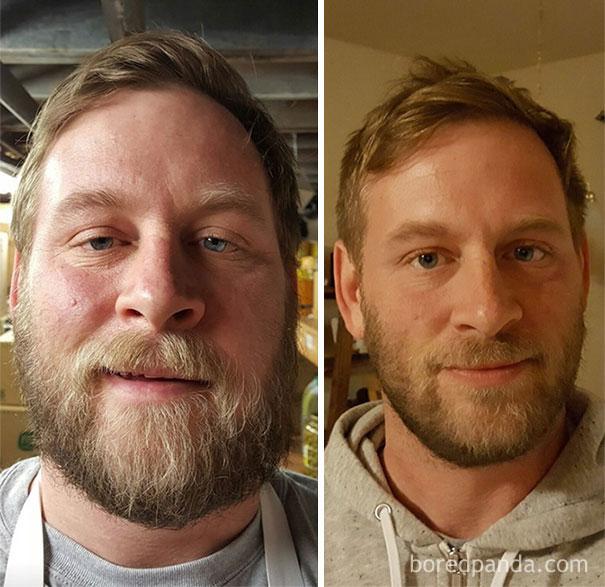 transformations avant après alcool buveurs boire