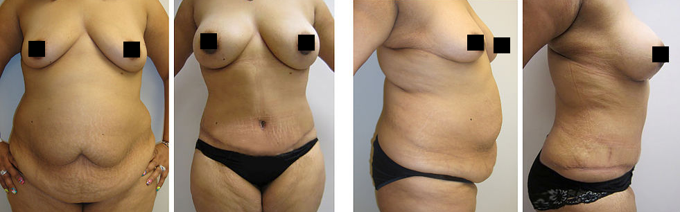 cosmetic surgery tummy tuck