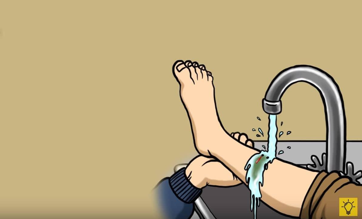 blessure eau douce robinet