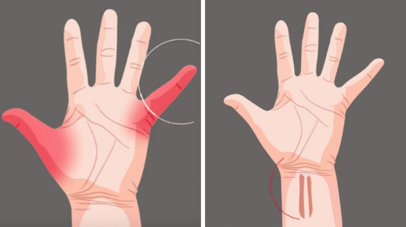 tendons de la main