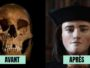 reconstitution faciale avant apres histoire